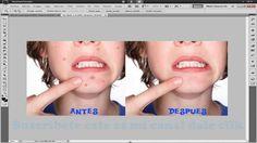 Tutorial photoshop cs5 español Como limpiar la cara Quitar Barros espinillas y manchas - http://solucionparaelacne.org/blog/tutorial-photoshop-cs5-espanol-como-limpiar-la-cara-quitar-barros-espinillas-y-manchas/