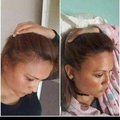 Nutriol Shampoo, Galvanic Spa, Hair Setting, Nu Skin, Photo And Video, Madagascar, Glow, Instagram, Sparkle