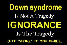 Children with Down Syndrome should still have the same right we got, not to be killed in the womb.