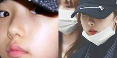 Netizens use SinB's childhood photos to prove she never got a nose job http://www.allkpop.com/article/2017/03/netizens-use-sinbs-childhood-photos-to-prove-she-never-got-a-nose-job