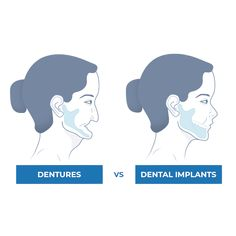 Nuvia Dental Implant Center - Dental Implant Options Dental Implant Surgery, Implant Dentistry, Dental Surgery, Cosmetic Dentistry, University Of The Pacific, University Of Utah, Infected Ingrown Hair, Wooden Dummy, Restorative Dentistry
