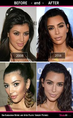 Kim Kardashian Face Pics - (Plastic Surgery Before and After) - Photo 5 - Care - Skin care , beauty ideas and skin care tips Kim Kardashian Surgery, Kourtney Kardashian, Kardashian Plastic Surgery, Kim Kardashian Before, Celebrity Plastic Surgery, Botox Before And After, Celebrities Before And After, Kris Jenner, Kendall Jenner