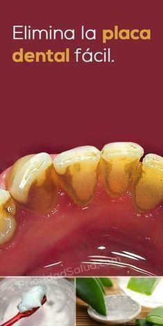 Remedio natural para eliminar la placa dental y el sarro en los dientes. Solucion super sencilla que promueve la higiene y la salud bucal.