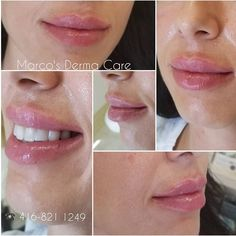 Before Getting Lip Fillers: Everything You Need to Know – My hair and beauty Dermal Fillers Lips, Botox Fillers, Lip Fillers, Lip Injections, Lip Plumper, Beauty Care, Beauty Hacks, Beauty Tips, Aesthetic Doctor