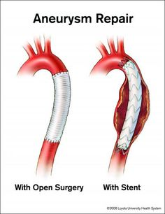 ascending aortic aneurysm | More aortic chest aneurysms being treated with less-invasive stents