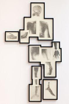 "Matthew Day Jackson, ""Bullet Man,""  2011, photogravure, 202 x 118 cm,  Edition of 20"