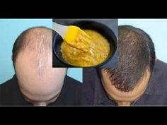 Remédio para queda de cabelo - faça seu cabelo crescer com esta receita