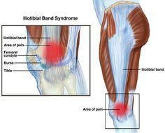 Iliotibial band syndrome (ITBS) is one of the most common causes of knee pain, particularly in individuals involved in endurance sports. It accounts for up to 12% of running injuries and up to 24% of cycling injuries. ITBS is typically managed conservatively through physical therapy and temporary activity modification.