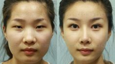 South Korean Plastic Surgeons Are Too Good At Their Job