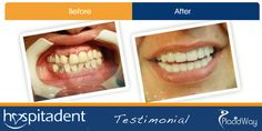 Dental_Implants_in_Turkey - High Standard Dental Treatment at Low Cost While You Are On a Holiday in Istanbul
