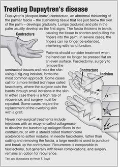 Information graphic about Dupuytren's contracture with links to acupressure for hand and finger pain