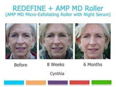 """WEDDINGS * REUNIONS * GRADUATIONS ??? Meet Cynthia, an Atlanta Real Estate agent who wanted to look her best for a family wedding and """"all of those pictures"""".  Rodan+Fields CLINICALLY PROVEN Skincare delivered right to your doorstep, from the doctors who created ProActiv! Ask me how you can SAVE 10-30%, get FREE Shipping and a FREE Gift!!"""