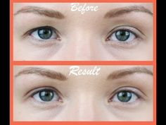 Facial Exercises for Eyelid Droop - Enjoy Taut Eyelids! - YouTube