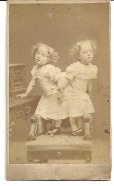 Original CDV Photo of Siamese Twins Josefa and Rosa Blazek Bohemian Twins | eBay