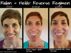 Does your skin care give you results like these? Check out Jocelyn's personal results! Not surprising! Rodan + Fields works! CLINICALLY PROVEN Products that give RESULTS!! indra.arman@gmail.com