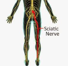 Health Homeopathy: Sciatica Treatment Combo http://www.rxhomeo.com/pharmacy/homeopathic.php?act=viewProd&productId=362&pName=Sciatica+Treatment+Combo