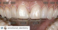 #Repost @emotional_dentistry with @repostapp  Planejamento virtual do tratamento.  Explore #odontologia #odontologiaestetica #venners #lentesdecontatodental #dentistry #smile #sorriso #virtual #dsd #estetica #dental #periodontia #protesedentaria #southeast #asia #dental #report #seadr by southeastasiadentalreport Our General Dentistry Page: http://www.myimagedental.com/services/general-dentistry/ Google My Business: https://plus.google.com/ImageDentalStockton/about Our Yelp Page…