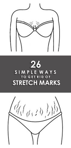 How to get rid of stretch marks? Then you should read this article that guides how to remove your stretch marks fast and naturally by home remedies and allopathic medicines. Best Anti Aging, Anti Aging Skin Care, Natural Skin Care, Natural Beauty, Deep Cleaning Tips, Cleaning Hacks, Stretch Mark Removal, Simple Life Hacks, Acne Skin