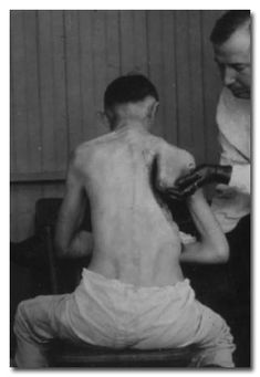 This patient had his ribs resected to drain the pus out of his lungs before he drowns in it. In the days before antibiotics, this was a common side-effect of pneumonia. The ribs were often removed so the lungs could be more easily accessed for incision and draining, a procedure which killed many patients
