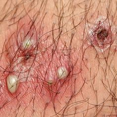 What is genital herpes? Genital herpes is a sexually transmitted disease (STD) caused by an infecti… Source by glenda_poole Home Health Remedies, Natural Home Remedies, Natural Healing, Herbal Remedies, Natural Medicine, Herbal Medicine, How To Treat Boils, Genital Herpes, Alternative Health