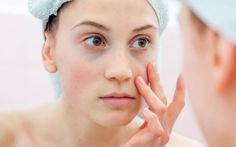 6 Blotchy Skin Causes - Common Skin Care Mistakes That Cause Redness Reduce Dark Circles, Dark Circles Under Eyes, Eye Circles, Dark Circles Makeup, Dark Circle Remedies, Anti Aging Tips, Tips Belleza, Skin Problems, Face Care
