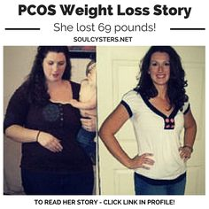 She lost 69 pounds with PCOS.  Read her story...