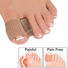 """Day 'n Night Bunion Adjuster ~~  Day 'N Night Bunion Adjuster gently stretches tight tendons and muscles, while cradling, moisturizing and correctly repositioning your painful bunion toe. Orthopedic design fits so comfortably, you can wear it with socks, shoes, and at night while you sleep. 1 1/2"""" x 1 1/8"""" imported nylon toe sleeve and 1/2"""" soft, contoured gel cushion. One size fits most - fits either foot."""