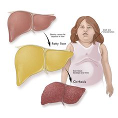 Fatty Liver Syndrome – Causes, Symptoms, Diagnosis, Treatment and Ongoing care Nonalcoholic fatty liver disease (NAFLD) describes a spectrum of fatty changes in the liver ranging from asymptomatic hepatic steatosis (fatty liver) to nonalcoholic steatohepatitis (NASH) and cirrhosis http://health.tipsdiscover.com/fatty-liver-syndrome-causes-symptoms-diagnosis-treatment-and-ongoing-care/#ixzz2a9n79ItQ