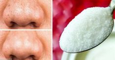 12 Natural Products to Help Your Skin Stay Forever Young Beauty Tips For Skin, Natural Beauty Tips, Organic Beauty, Beauty Make Up, Beauty Care, Beauty Skin, Health And Beauty, Beauty Hacks Nails, Beauty Hacks For Teens