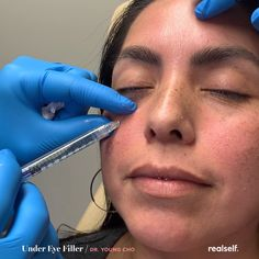 Injectable fillers are one option for reducing the appearance of dark under-eye circles. videos How to get rid of dark circles under eyes Under Eye Fillers, Cheek Fillers, Botox Fillers, Dermal Fillers, Dark Circles Treatment, Dark Circles Under Eyes, Dark Under Eye, Relleno Facial, Diy Beauty Hacks