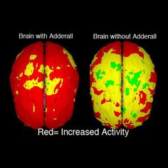 Adderall® has been used to treat ADHD in adults for many years. In 2004, the Harvard investigators involved in analysis of Adderall XR® Phase III trials in adults concluded that the drug significantly improved subjects' ability to maintain focus, concentrate, and pay attention for longer periods of time || Contact us for more information, and let's get you #focused and back on track.