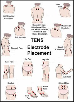 Remedies Arthritis TENS Electrode Placement - TENS units are a great non-invasive pain management alternative to oral medication. Read more for our TENs Electrode placement guide Leg Pain, Back Pain, Foot Pain, Tens Electrode Placement, Tens Unit Placement, Massage Therapy, Cupping Therapy, Chronic Pain, Chronic Illness