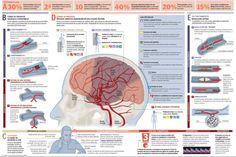 Ictus cerebral, ACV o Accidente Cerebrovascular: sintomas y tratamiento