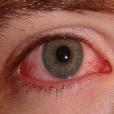 Effective Home Remedies For Pink Eye (neem, cucumber slices, Witch Hazel, chamomile tea)