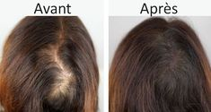 L'huile d'olive, le miel et la cannelle, un masque naturel pour prévenir la chutede cheveux! http://calvitietreatment.blogspot.com