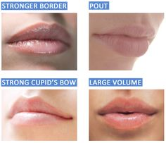Restylane lip injections. Galleria Cosmetic Center www.galleriacosmeticcenter.com or 713-677-0484 for more info!