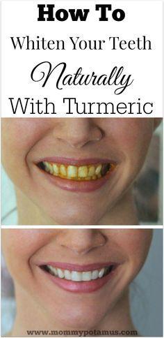 whiten-teeth-naturally-turmeric-powder