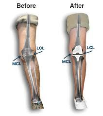 39 Best Knee Replacement & Spine Surgery Centre in Punjab, India