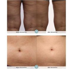 92% of people want to improve the appearance of their body! You will go cuckoo for our new product, #NeriumFirm. It is a body contouring cream that smooths, tightens and firms skin! Message me for details so you can rock you swimsuit this summer! #GR14 #Nerium http://www.lisacraig.theneriumlook.com