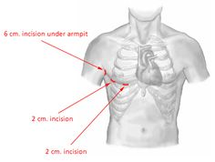 catheter ablation of atrial fibrillation anonymou