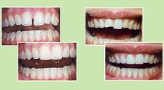 Bonding a procedure that is similar to veneers but a composite resin material is bonded to the front of the tooth. Bonding can be used to close spaces between teeth, lengthen or reshapen teeth, and whiten stained teeth.