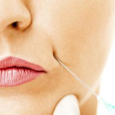 For many the first appearance of frown lines is a real worry and bellafill a new long lasting filler for wrinkles and acne scars lipstick solutioingenieria Gallery