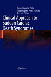Be sure to read this  Clinical Approach to Sudden Cardiac Death Syndromes - http://www.buypdfbooks.com/shop/uncategorized/clinical-approach-to-sudden-cardiac-death-syndromes/