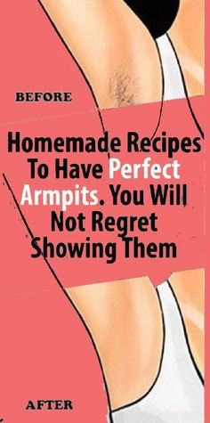 Homemade Recipes to Have Perfect Armpits. You will not regret showing them Homemade Recipes to Have Perfect Armpits. You will not regret showing them Beauty Hacks For Teens, Leg Hair, Beauty Kit, Beauty Secrets, Daily Beauty, Beauty Care, Beauty Products, Oily Hair, Fake Eyelashes