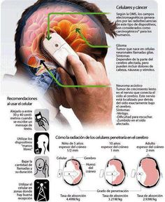 h jxk Medical Anatomy, Crps, Optometry, Medical Students, Reflexology, Neuroscience, Good To Know, Health Fitness, Personal Care