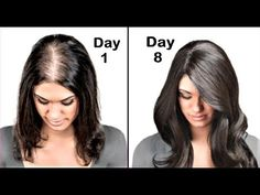 Thicker Hair Remedies She Had Very Thin Hair But She Used This Ingredient And Got Thick Hair Within A Week Life well lived Hair Remedies For Growth, Hair Loss Remedies, Thinning Hair Remedies, Onion Juice For Hair, Onion Oil For Hair, Get Thicker Hair, Bouncy Hair, Coconut Oil Hair Mask, How To Get Thick