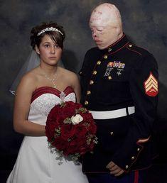 Iraq War 2007, Photojournalist Nina Berman award-winning portrait of disfigured Iraq vet Ty Ziegel and his fiancée.