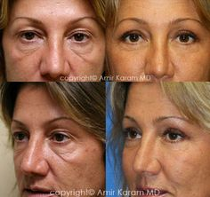 Consider a fat transfer procedure in San Diego - La Jolla California with Dr Karam. Information on fat transfer procedures, full face fat transfer, and micro fat transfers to help restore volume to the face. La Jolla California, Fat Transfer, Before After Photo, Personal Style, Eyes, Building, Top, Beauty Tutorials, Buildings