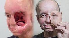 polip hidung yang dibiarkan terlalu lama tumbuh hingga membesar juga akan menimbulkan radang otak dan merusaknya struktur wajah penderita polip.