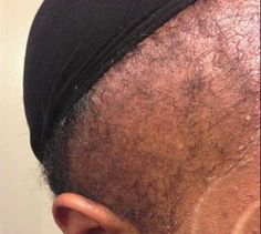 Hair Loss Remedies Discover How to Use Emu Oil as a Hair Growth and Hair Loss Remedy - According to research, emu oil is known to wake up of sleeping hair follicles. Find out how it can help your hair loss. Hair Remedies For Growth, Hair Loss Remedies, Thinning Edges, Regrow Hair Naturally, Emu Oil, Male Pattern Baldness, Hair Loss Women, Prevent Hair Loss, Hair Loss Treatment